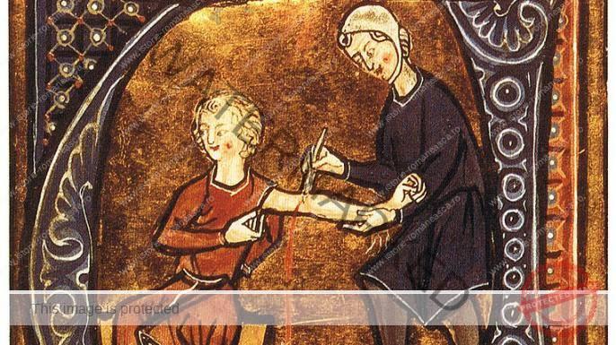 Procesul de scarificaţie a sângelui